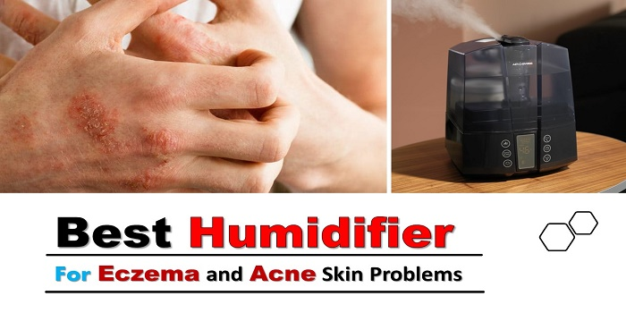 Best Humidifier for Eczema and Acne